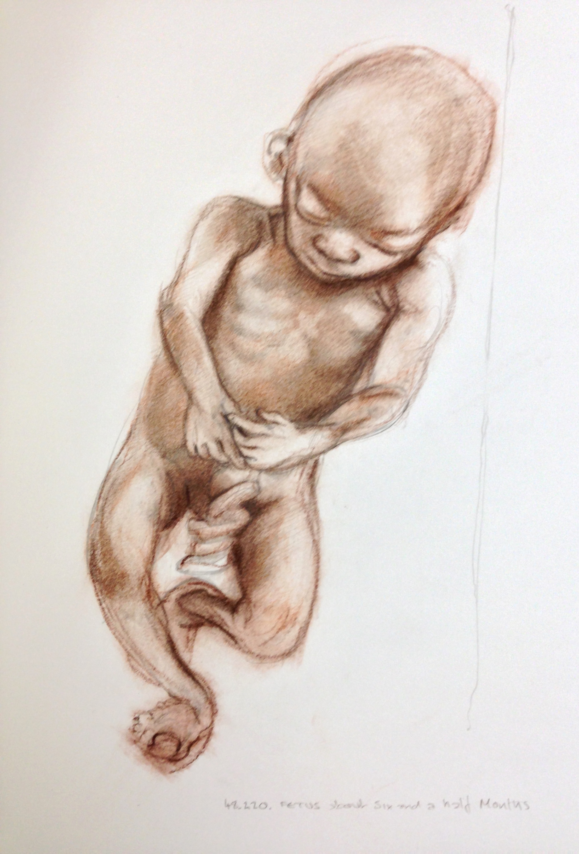 drawing in Glasgow University Anatomy Museum | Dis/FIGURATION