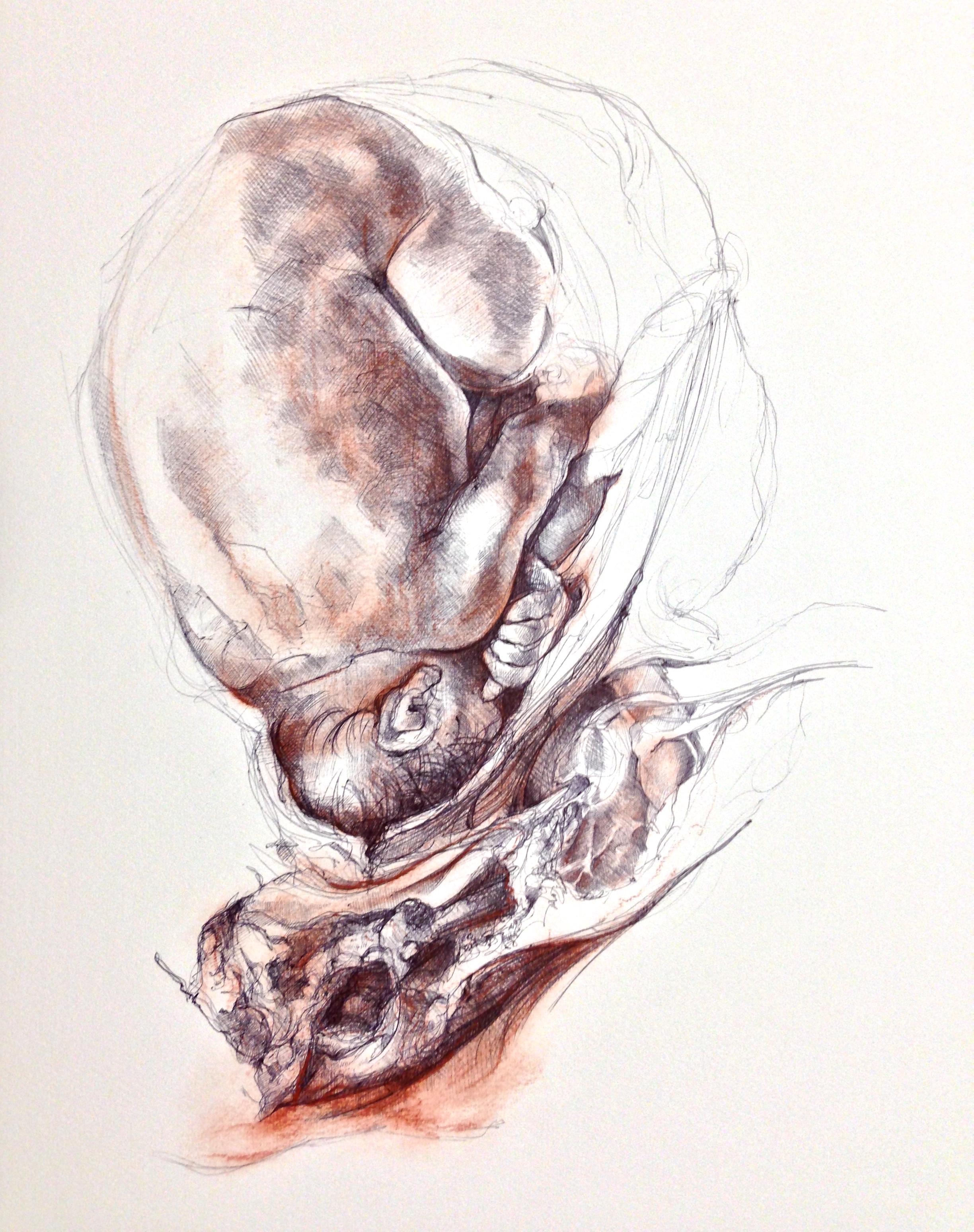 Gravid Uterus Disfiguration
